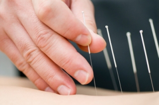dry_needling page